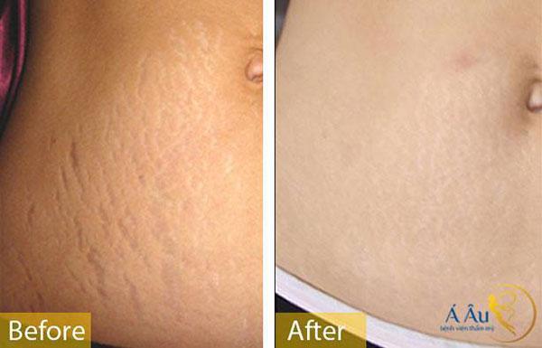 cách điều trị rạn da sau khi sinh 4