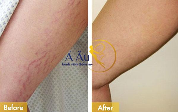 cách điều trị rạn da sau khi sinh 3